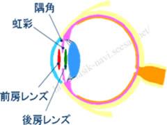 フェイキックIOLイメージ6.jpg
