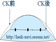 CKの原理.jpg